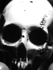 x5_skeletonPlate
